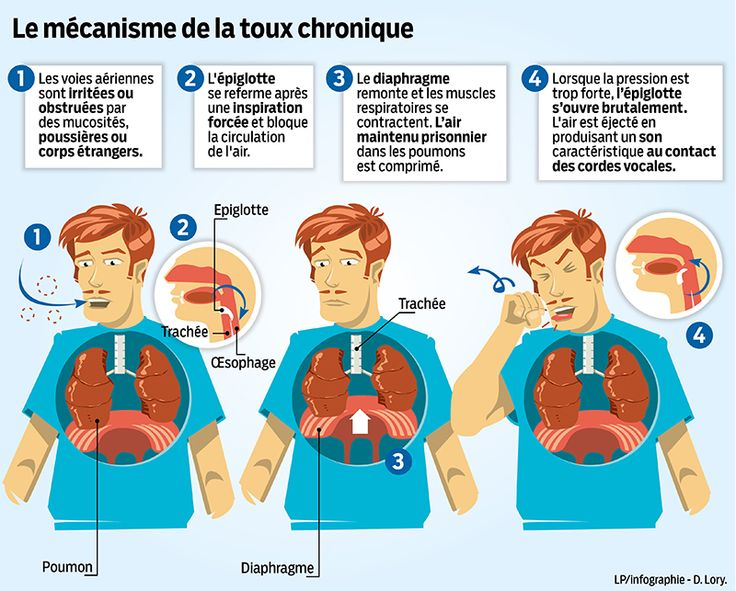 Le m canisme de la toux chronique une infographie parue for Le journal de la