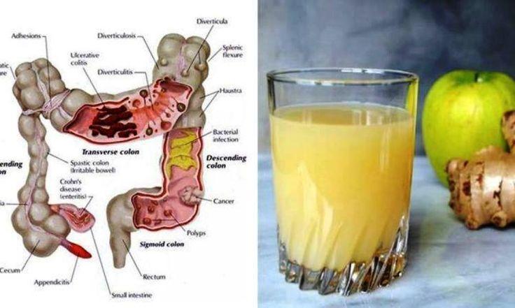 Le 3 jus, Nettoyeur de Colon: Comment les pommes, le gingembre et le citron peuvent éliminer plusieurs grammes de toxines de votre corps!
