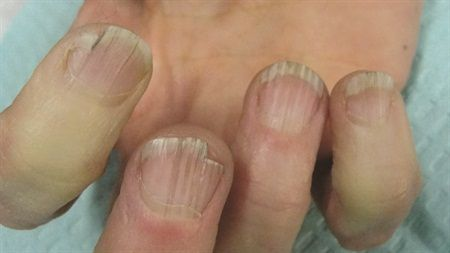 Aging nails
