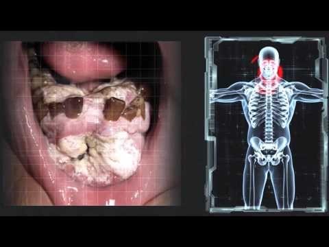 DECISIÓN ¿FUMAR O NO FUMAR? - YouTube