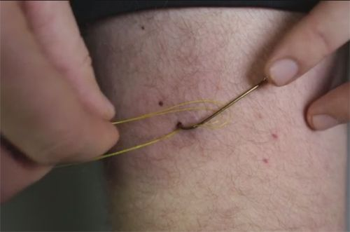 Video Pro Tip: How to Remove a Fish Hook from Your Skin - Orvis News: