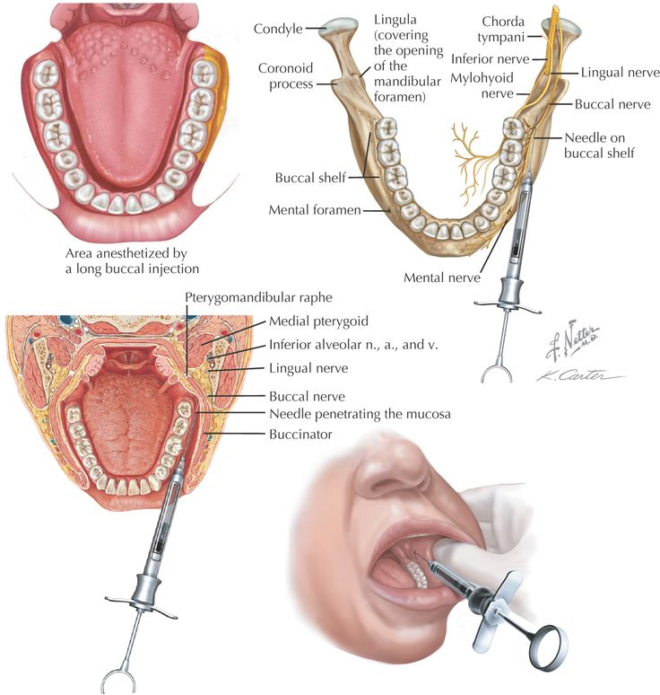 long buccal block dental injection - Google Search