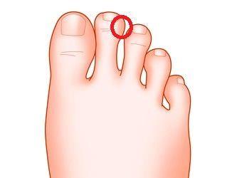 東洋医学では、便秘改善・解消のための対策として、ツボを刺激してあげることが効果的だと言われています。便秘に効く足のツボについて、その場所や指圧の仕方を、ドクター監修の記事で詳しく解説します。