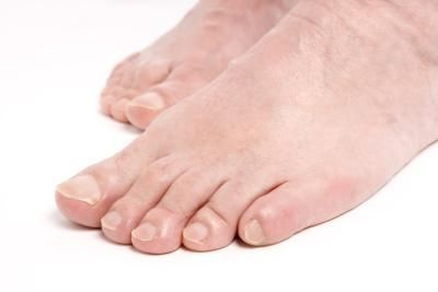remove callus with asprin: Home Remedies, Aspirin, Beauty Tips, Feet, Homes, Health, How To Get, Treat
