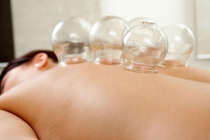 """I Tried It…Chinese Cupping Therapy... If you're unfamiliar with the term cuppingtherapy, take a quick trip over to Google and search for """"celebrity cupping"""". You'll see tons of stars with what looks like circular hickeys on their back."""
