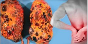 As principais causas de mioma e infertilidade na mulher são o anticoncepcional e as carnes, especialmente o frango, devido à grande quantidade de hormônios e aditivos