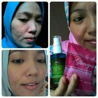 www.markusandika.tk Kulit wajah bekas jerawat mulus kembali. Terima kasih untuk bio cell stem cell dan glucogen  #moment #biocell #stemcell #glucogen #indonesia #olshop   Wa:089637157149 Pin:7dd72723