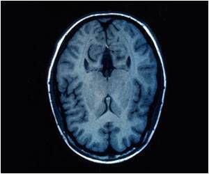 Cognitive Effects of Alzheimer's Disease Compounded When Combined With Cerebrovascular Disease