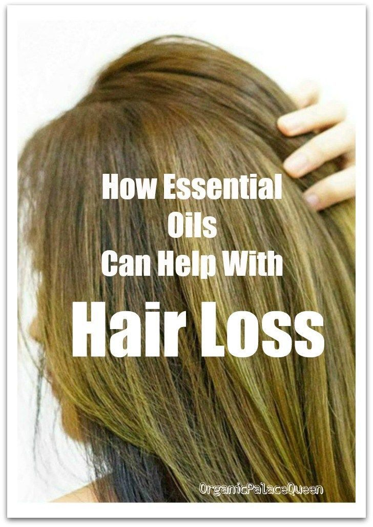 Female Hair Loss Remedies (With images) | Hair loss women, Hair loss  remedies women, Thick hair remedies