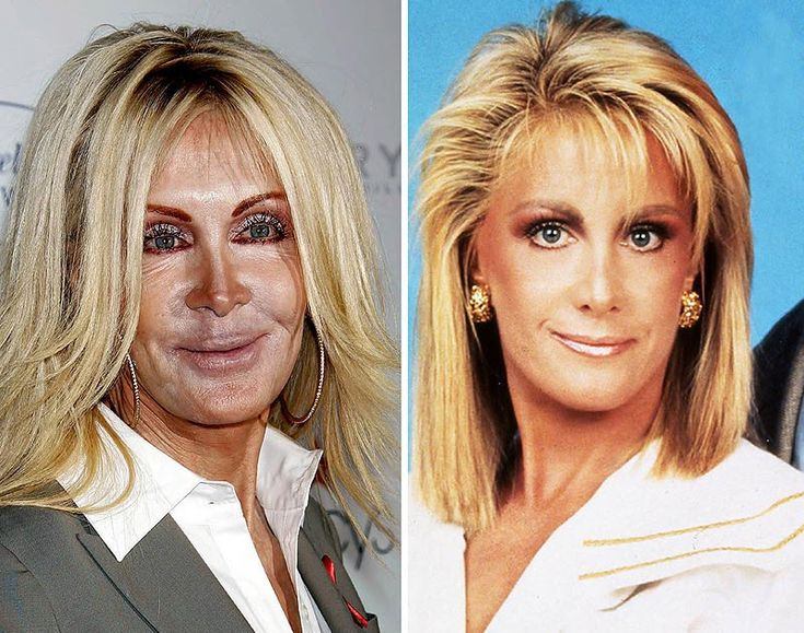 """10 Celebrity Who Aged Terribly - The list of the top 10Celebrity Who Aged Terribly might not blow your mind until you see the results from then now  Everybody knows what the saying goes """" Make-up can make you age poorly"""". Well in some way it can make you look very horrible. Doing result, ive notice in some doctor reports that 1-100 people in a state ages badly due to common reasons as dry skin,poor hygiene and much more. Now the biggest reason known from celebrity which will be…"""