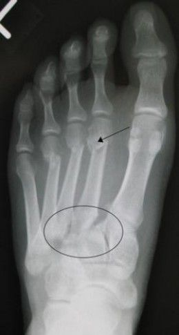 Lisfranc Injuries: Midfoot Sprains, Fractures, and Dislocations