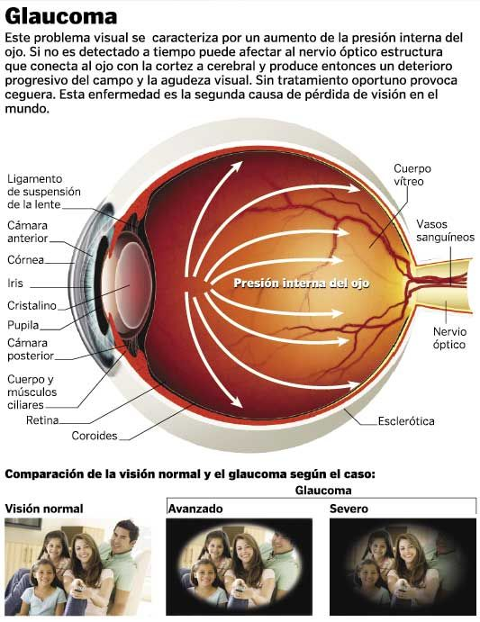 what is glaucoma essay Glaucoma afflicts about 55 million new sufferers each year it is a very serious and potentially painful disease that is believed to be inherited, is caused by disturbances to the intraocular pressure (iop) of the eye, and is the second leading cause of blindness.