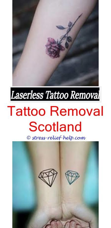 fast tattoo removal how are tattoos removed - tattoo removal kansas ...