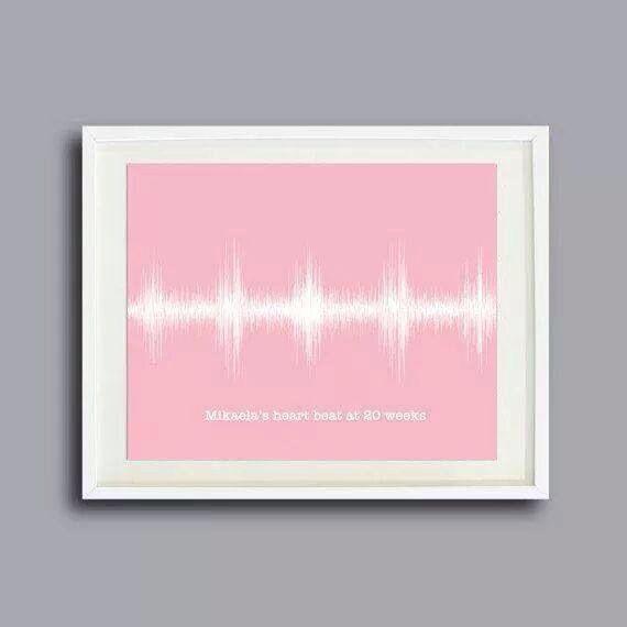 Baby's heartbeat