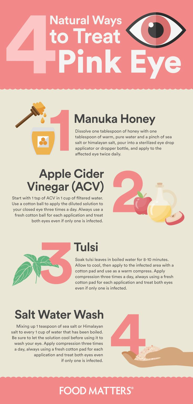 Natural Home Remedies For Pink Eye (Conjunctivitis