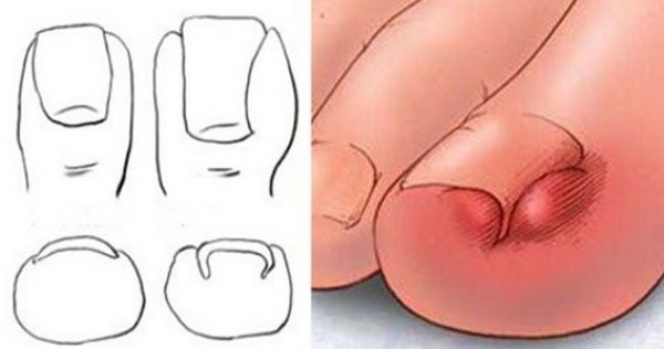 Un articol de Mihaela Iliescu     Durerea unei unghii de la picior incarnate poate face chiar si din cea mai pasnica persoana un monstru.  ...