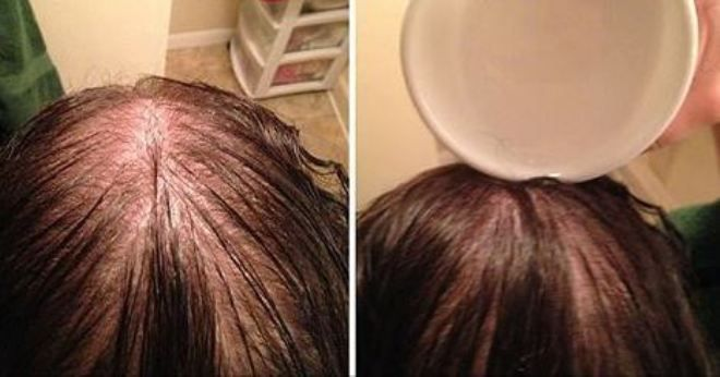 Her Hair Was Turning Grey And Falling Out, Until She Tried This! - http://nifyhealth.com/her-hair-was-turning-grey-and-falling-out-until-she-tried-this/