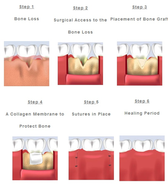 the three ways of performing root canal operation on a tooth Apicoectomy, also known as root end surgery, is an endodontic surgery procedure involving the surgical removal (ectomy) of the tip of a tooth root (apex), and the sealing of the root canalthe purpose of an apicoectomy procedure is to fight an infection in the tissues surrounding the tip of the root and save the tooth from extraction.