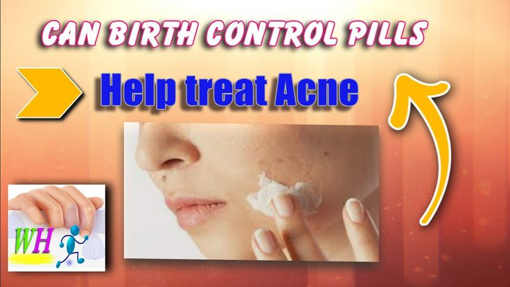 Can birth control pills help treat acne, get rid of acne scars, how to t...