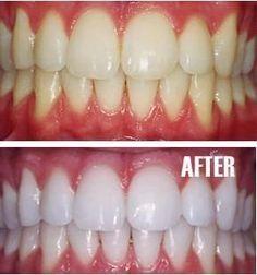 Blanqueamiento -Poner un poco de pasta de dientes en una taza pequeña, mezcle en una cucharadita de bicarbonato de sodio más una cucharadita de peróxido de hidrógeno (agua oxigenada), y la mitad de una cucharadita de agua. Mezclar bien y luego cepillarse los dientes durante dos minutos. Recuerde que debe hacerlo una vez a la semana hasta que haya alcanzado los resultados que desea. Una vez que sus dientes esten blancos,  utilizar el tratamiento de blanqueamiento, una vez cada mes o dos.