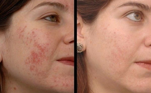 Top 10 Best Home Remedies to Remove Pimple Marks &…
