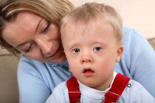 Síndrome de Down. 10 pautas para atender a su desarrollo
