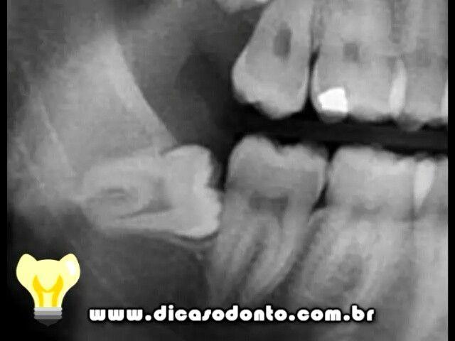 """Sisos podem ser dentes """"bandidos"""" quando mal posicionados. Dentes semi inclusos que não conseguem erupcionar na boca pela má posição podem trazer alguns problemas sérios. Mas um siso aí no meio do video passou dos limites!  #dicasodonto #dentes #siso #dentista #dentistas #toothlife #thug #thuglife #molar #dentistry #snoopdog #amigosdoritxard #vidadedentista  @dentistasincero @leoaugustobh @geisson @daiacosta02 @vidadedentista"""