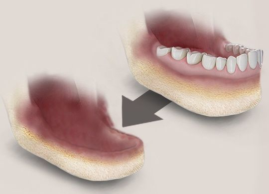 Did you know that dentures can cause jaw bone loss? http://tibordental.com/blog/dentures-cause-jaw-bone-loss