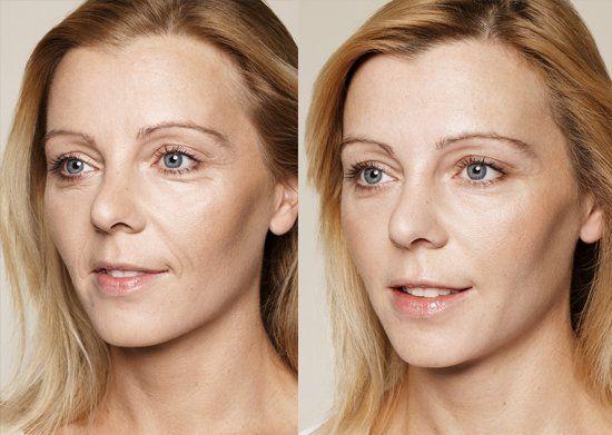 Good Promotion: Gegarandeerd 15 jaar jonger zonder botox