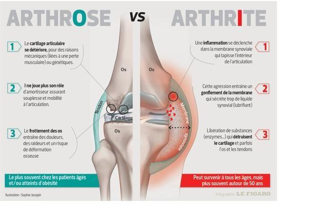 INFOGRAPHIE - Ces deux rhumatismes n'ont pas la même évolution, donc pas les mêmes traitements.