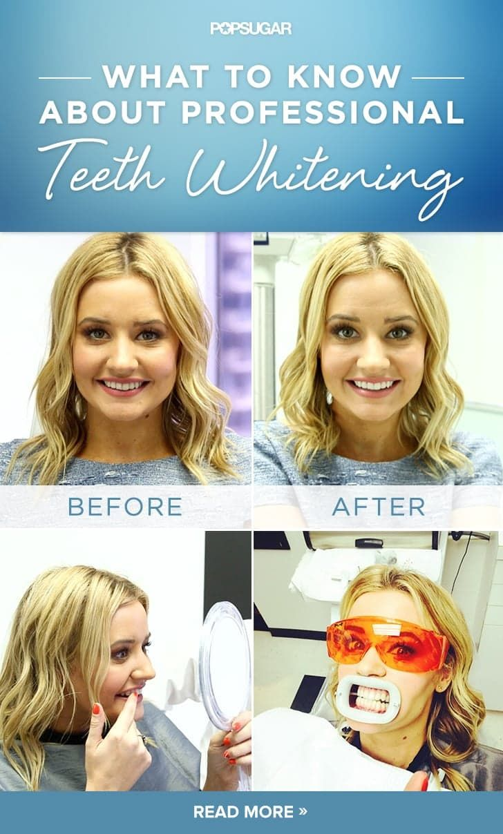 Pin for Later: Zoom Teeth Whitening: My Experience