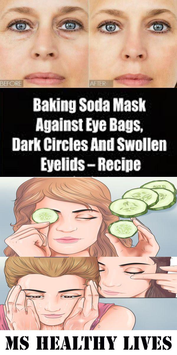 BAKING SODA MASK AGAINST EYE BAGS, DARK CIRCLES AND SWOLLEN EYELIDS – RECIPE!