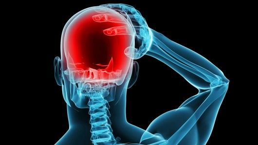 Top Tips To Eliminate Migraines That You Probably Didn't Know – Saturday Strategy