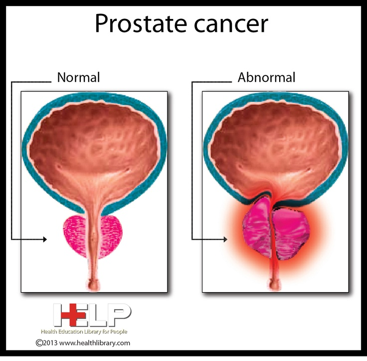 prostate information living with cancer bisexual