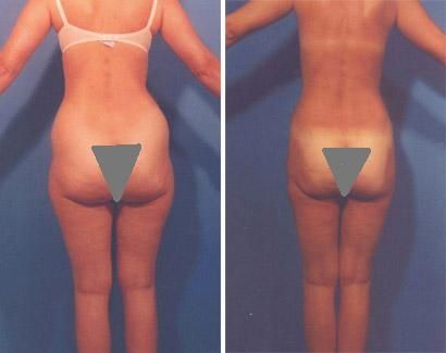 40 year old with Vaser Liposuction. The best form of liposuction