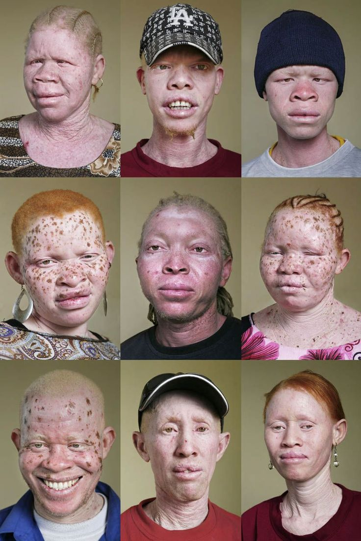 Leucoderma Treatment Hindi-Yo Me Cure Del Vitiligo