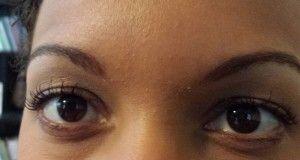 My PRK Eye Surgery Recovery Update - Dana Che. Considering PRK/LASIK? Read this! #prk #lasik