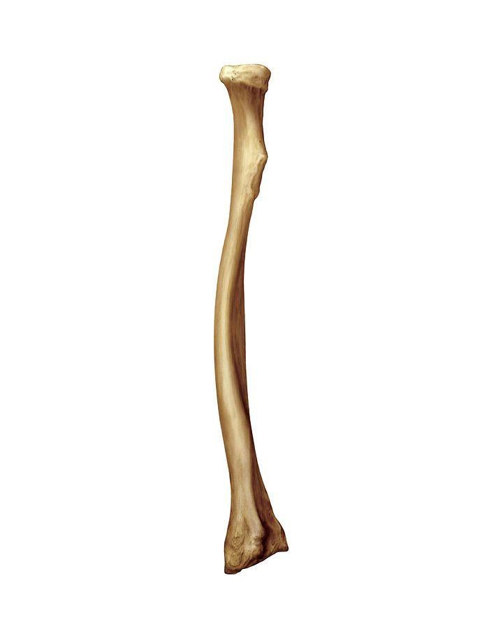 Radius Bone Photograph by Asklepios Medical Atlas