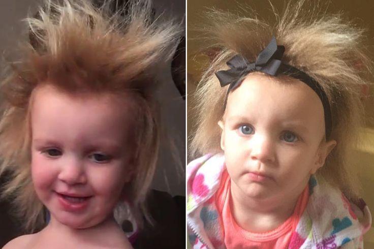 """Girl has rare genetic disorder that makes her hair impossible to brush Sitemize """"Girl has rare genetic disorder that makes her hair impossible to brush"""" konusu eklenmiştir. Detaylar için ziyaret ediniz. http://www.xjs.us/girl-has-rare-genetic-disorder-that-makes-her-hair-impossible-to-brush.html"""