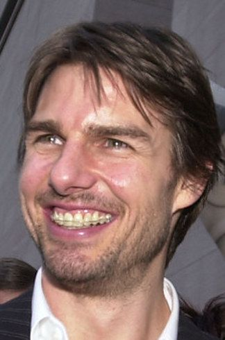 """Probably the most famous """"brace face"""" is that of Tom Cruise - and his smile is absolutely amazing!"""