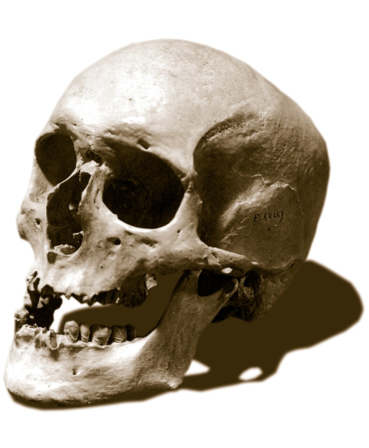 A skull labelled as Ned Kelly's was 'taken' from the Old Melbourne Gaol in 1978. A prominent Melbourne accountant claims the actual skull was swapped over in the late 1960s with one from India.