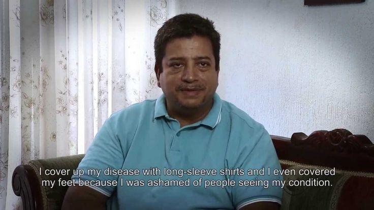 Testimonio de Reynaldo Aguado diagnosticado con psoriasis. www.fundapso.org