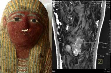 Sarcófago egipcio aloja un feto -Muy Interesante México