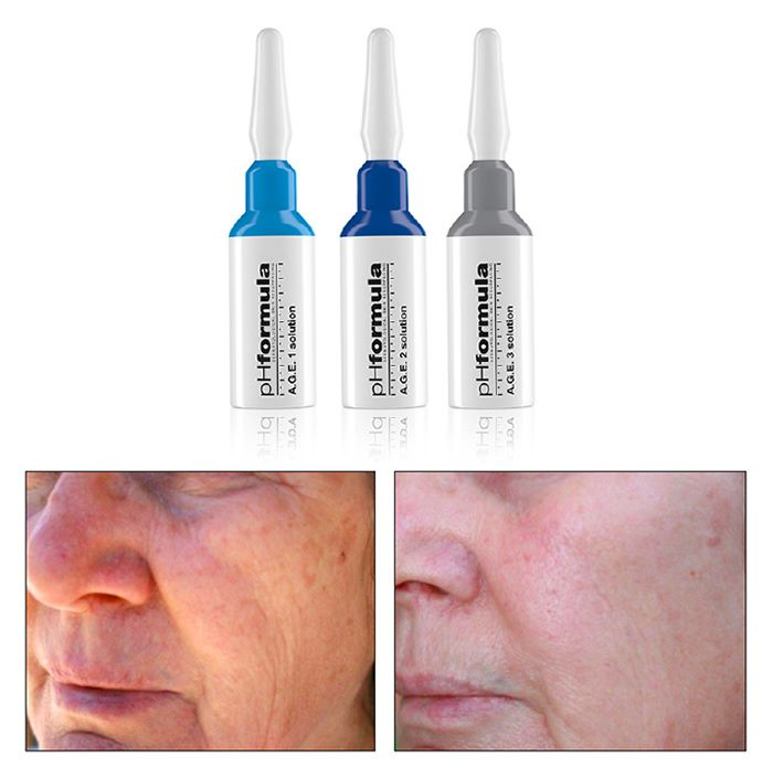 Active and effective skin resurfacing solutions for the treatment of typical signs of ageing like photo-ageing, pigment changes, dull sallow appearance, superficial and medium expression lines.  The pHformula A.G.E. solutions were specifically formulated as advanced anti-ageing skin resurfacing treatments to help correct typical signs of ageing.