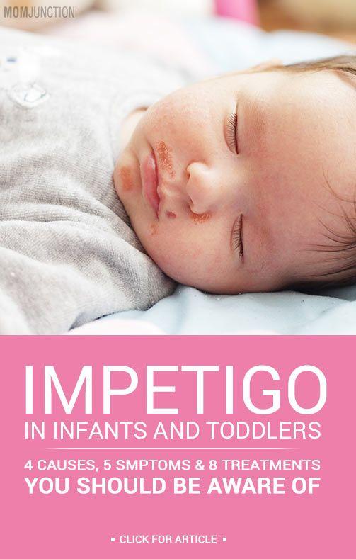 44 Best Impetigo Pictures Impetogo Images Images On