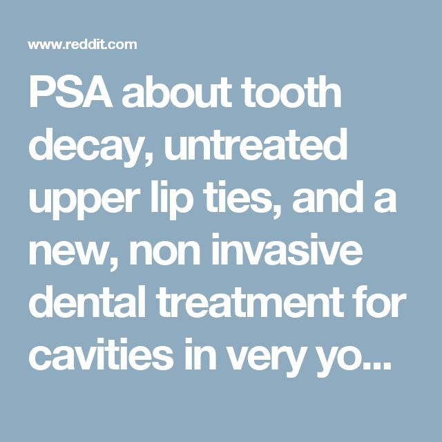 PSA about tooth decay, untreated upper lip ties, and a new, non invasive dental treatment for cavities in very young or special needs children - beyondthebump
