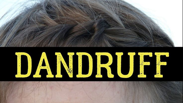 Top 20 Foods To Avoid For Preventing Dandruff