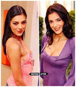 Well Known enlisted Natural Breast Enlargement Get…