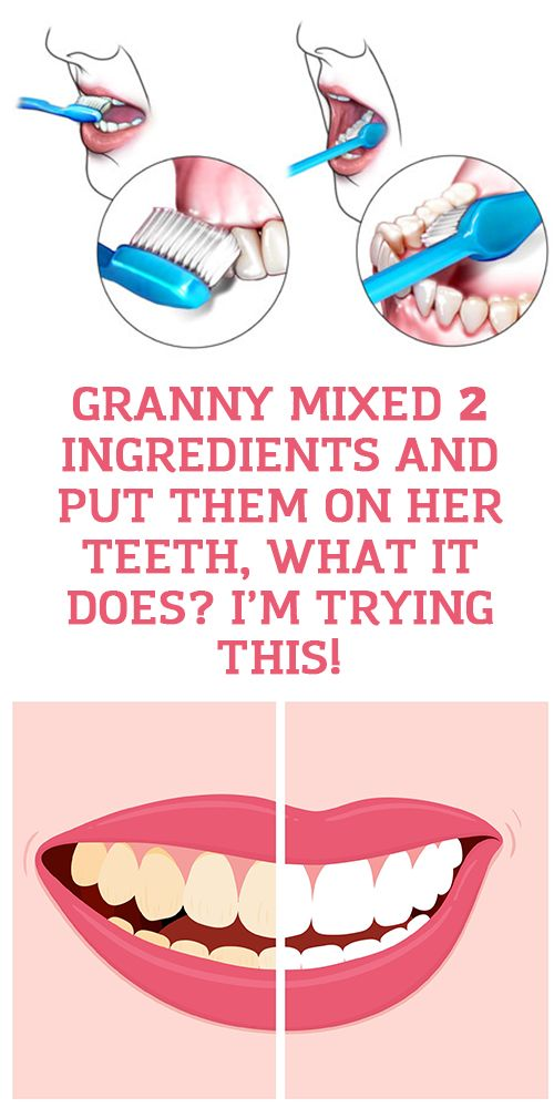 Granny mixed 2 Ingredients And Put Them On Her Teeth, What It Does? I'm Trying This!