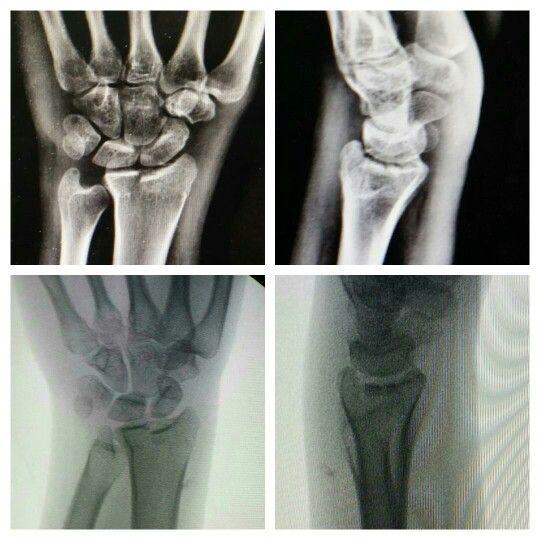 Pac. Femenina. 19a. Trauma en hiperextension y compresion axial muñeca derecha. Fractura articular desplazada. 8 dias de evolucion. Llevada a osteosintesis con abordaje dorsal. Placas bloqueadas 2.0 y sustituto óseo.